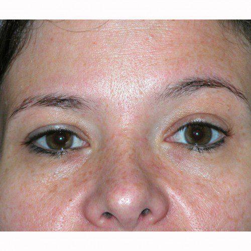 Blepharoplasty 13 Before Photo