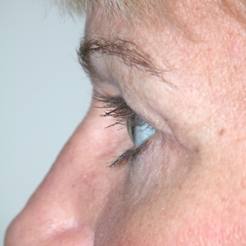 Blepharoplasty 14 After Photo