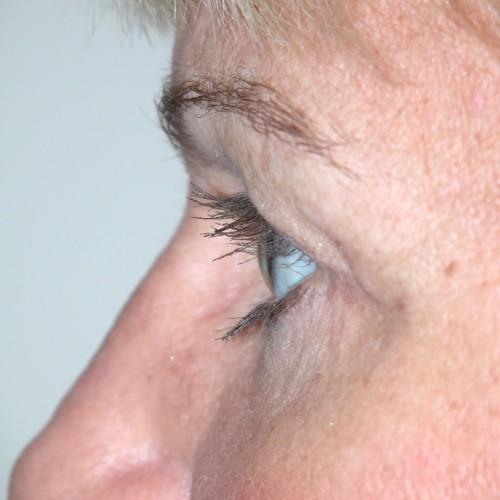 Blepharoplasty 14 After Photo