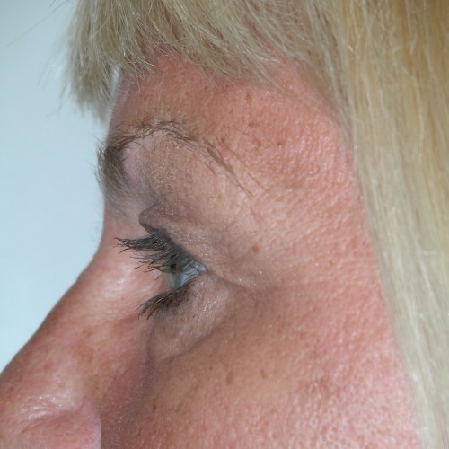 Blepharoplasty 14 Before Photo