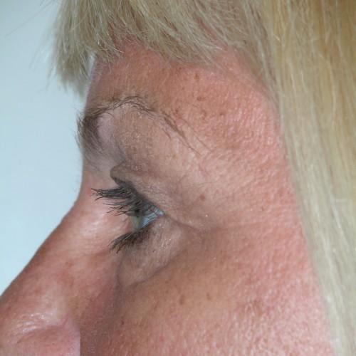 Blepharoplasty 14 Before Photo