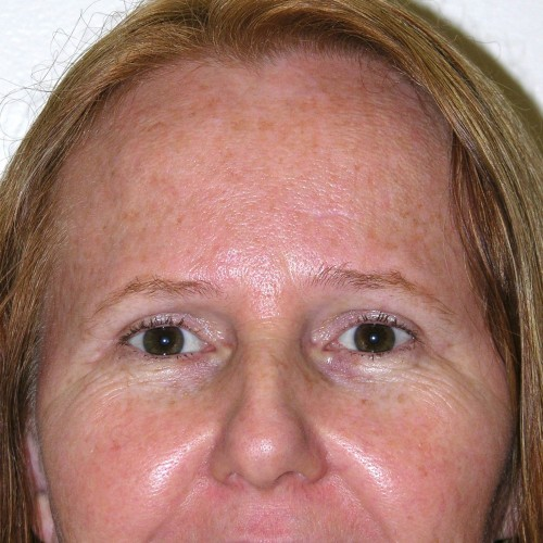 Blepharoplasty 16 After Photo