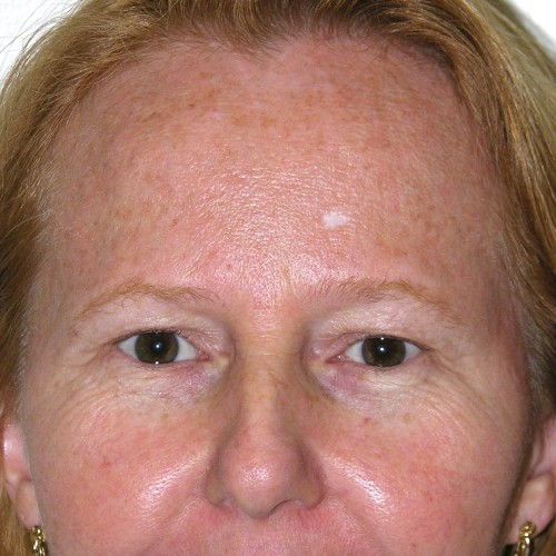 Blepharoplasty 16 Before Photo