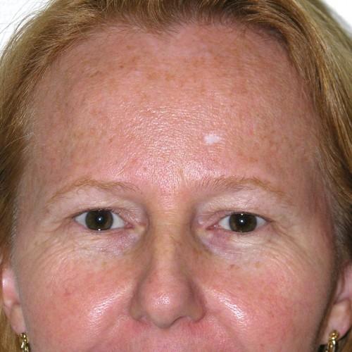 Blepharoplasty 16 Before Photo