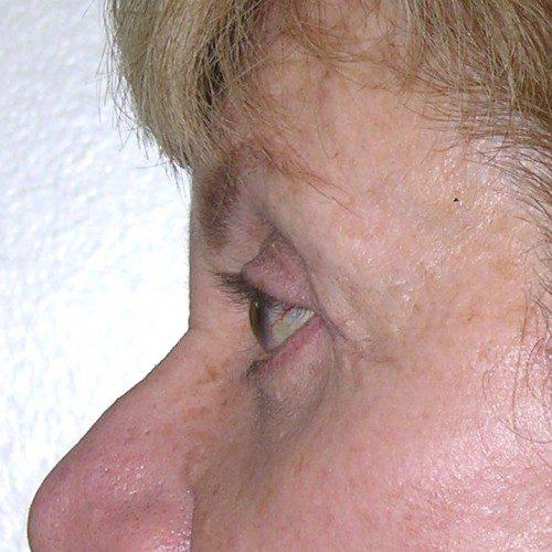 Blepharoplasty 17 After Photo