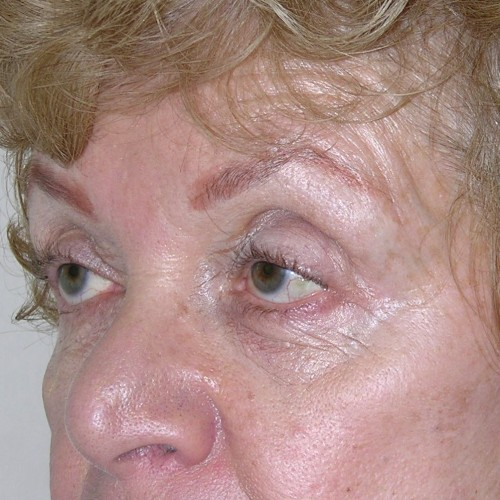 Blepharoplasty 17 Before Photo