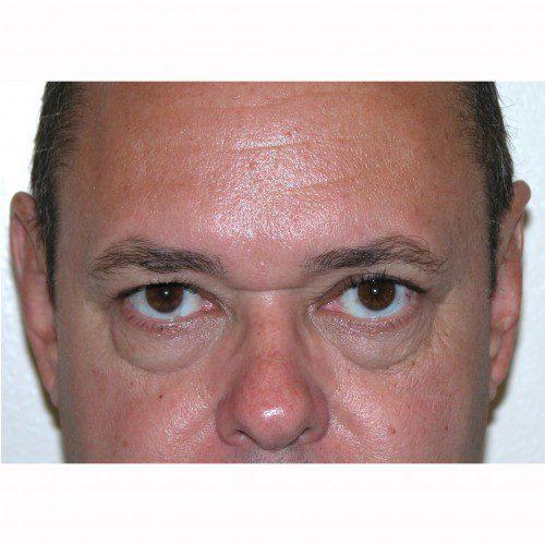 Blepharoplasty 18 After Photo
