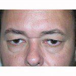 Blepharoplasty 18 Before Photo - 12
