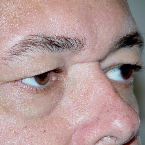 Blepharoplasty 18 Before Photo