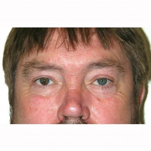 Blepharoplasty 19 After Photo