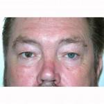 Blepharoplasty 19 Before Photo - 11