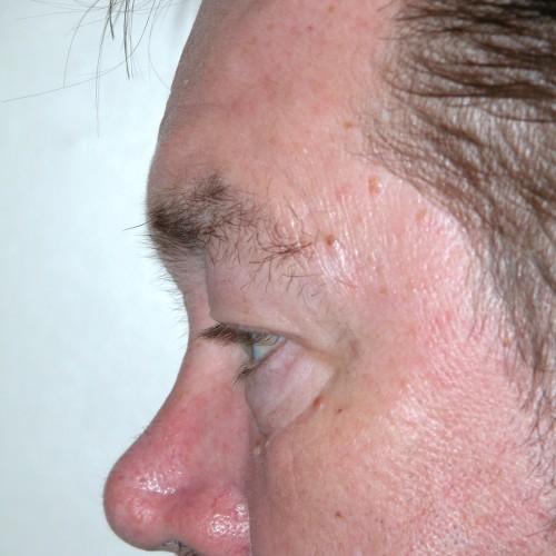 Blepharoplasty 19 Before Photo