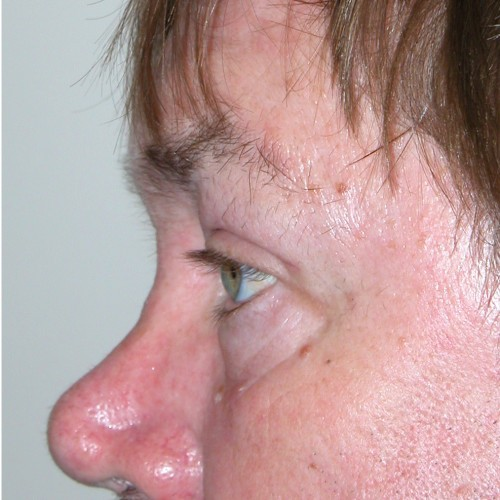 Blepharoplasty 19 After Photo