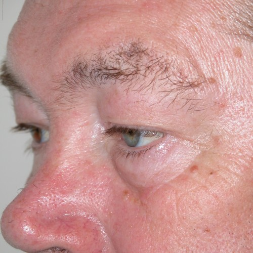 Blepharoplasty 19 Before Photo
