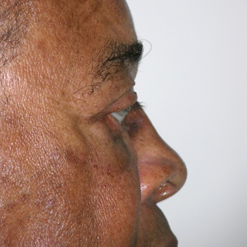 Blepharoplasty 20 After Photo