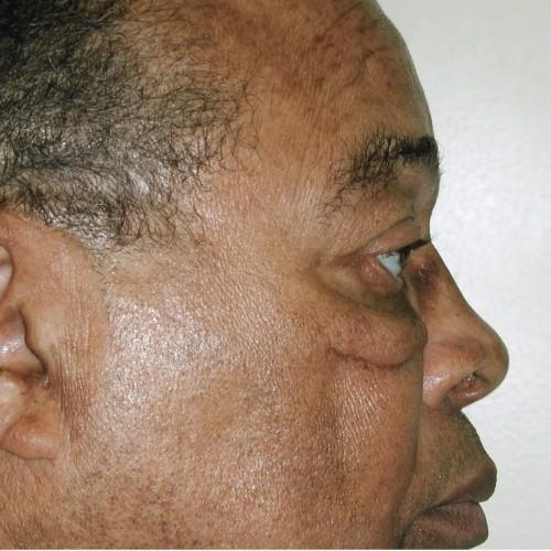 Blepharoplasty 20 Before Photo