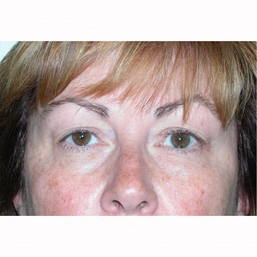 Blepharoplasty 3 Before Photo