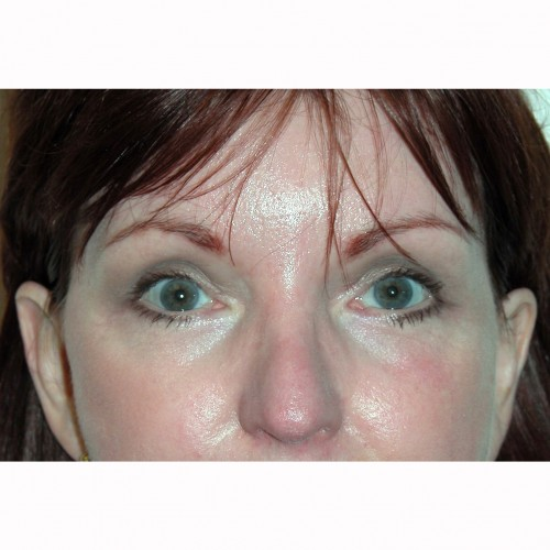 Blepharoplasty 21 After Photo