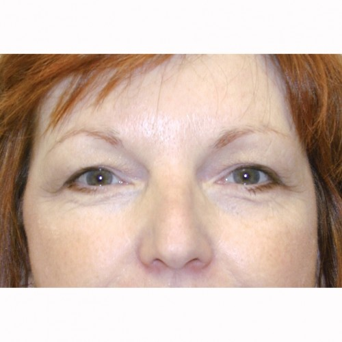 Blepharoplasty 21 Before Photo
