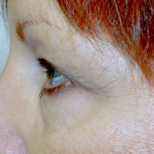 Blepharoplasty 21 Before Photo