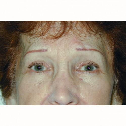 Blepharoplasty 4 After Photo
