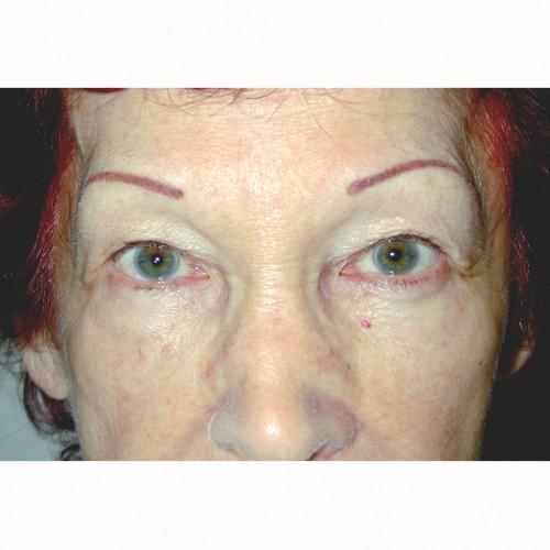 Blepharoplasty 4 Before Photo