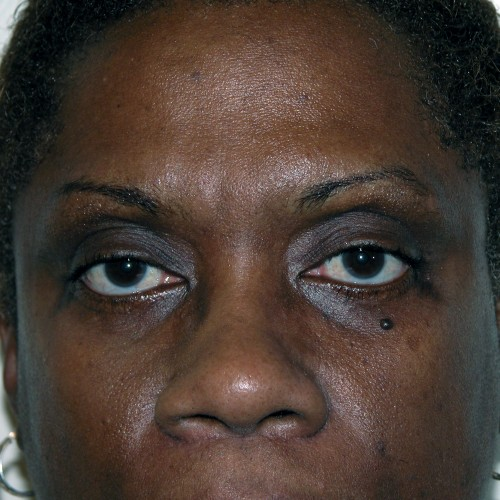 Blepharoplasty 5 After Photo