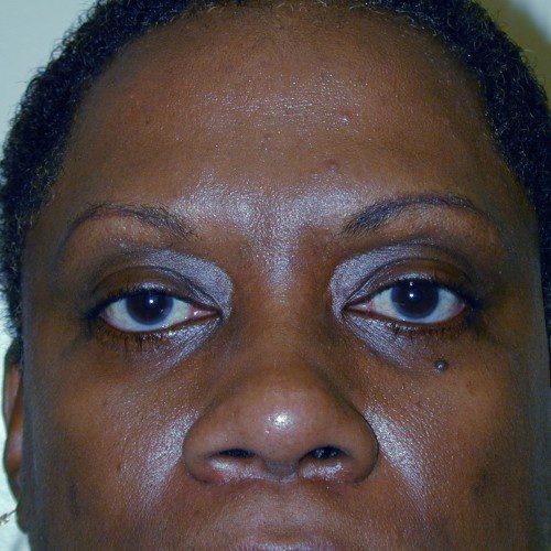 Blepharoplasty 5 Before Photo
