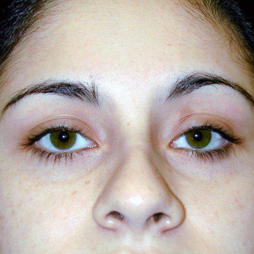 Blepharoplasty 6 After Photo