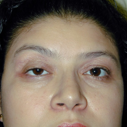 Blepharoplasty 6 Before Photo