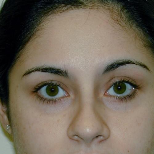 Blepharoplasty 7 After Photo