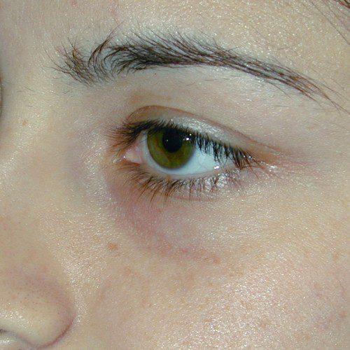 Blepharoplasty 7 Before Photo