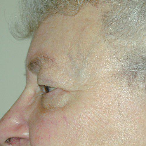 Blepharoplasty 8 Before Photo