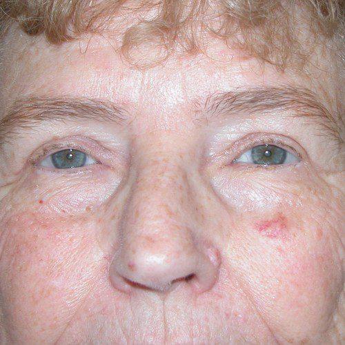 Blepharoplasty 9 After Photo