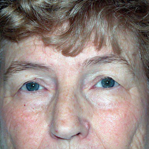 Blepharoplasty 9 Before Photo