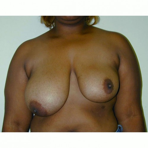 Breast Asymmetry 1 Before Photo