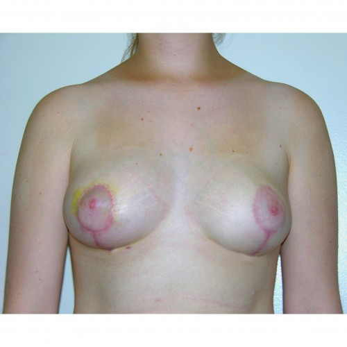 Breast Asymmetry 2 After Photo