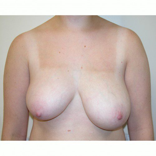 Breast Asymmetry 2 Before Photo