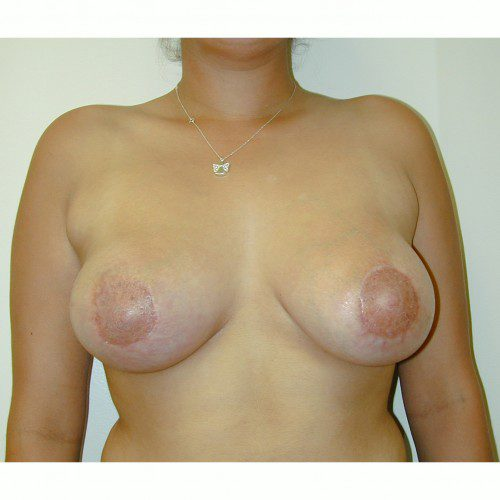 Breast Asymmetry 3 After Photo