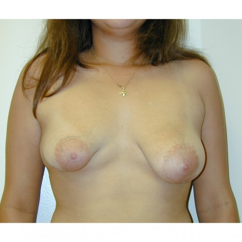 Breast Asymmetry 3 Before Photo