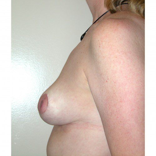 Breast Asymmetry 4 After Photo