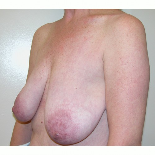 Breast Asymmetry 4 Before Photo