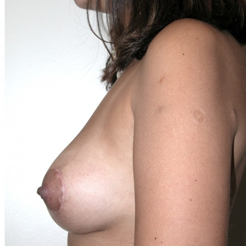 Breast Asymmetry 5 After Photo