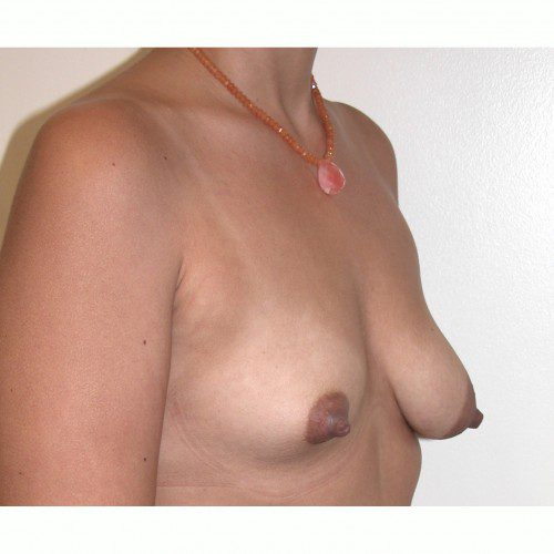 Breast Asymmetry 5 Before Photo
