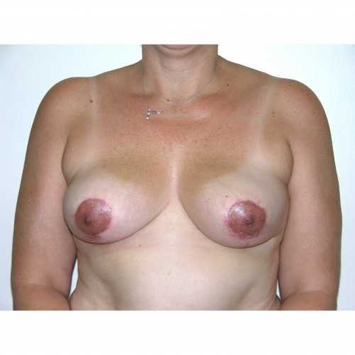 Breast Asymmetry 6 After Photo