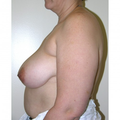 Breast Asymmetry 6 Before Photo