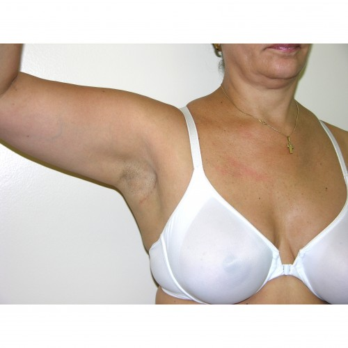 Breast Asymmetry 7 After Photo