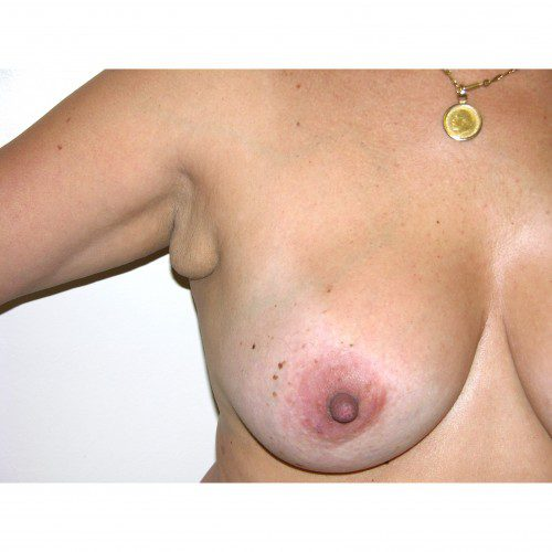 Breast Asymmetry 7 Before Photo