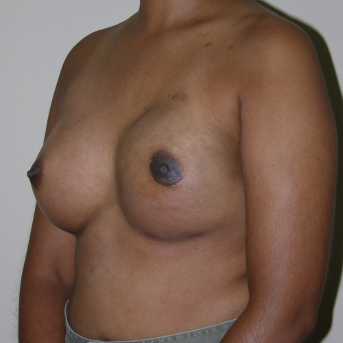 IMPLANT RECON 3 After Photo