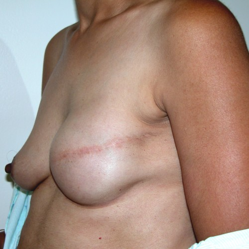 IMPLANT RECON 8 After Photo